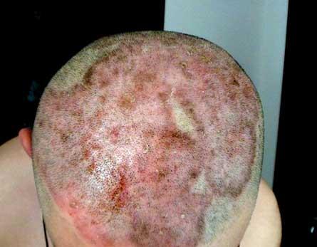 头部牛皮癣的鉴别诊断